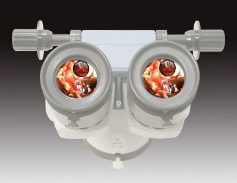 Microscope Accessories: BiOpix Picture-in-Picture